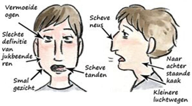 mondademhaling gezichtsontwikkeling scheve tanden kaakontwikkeling