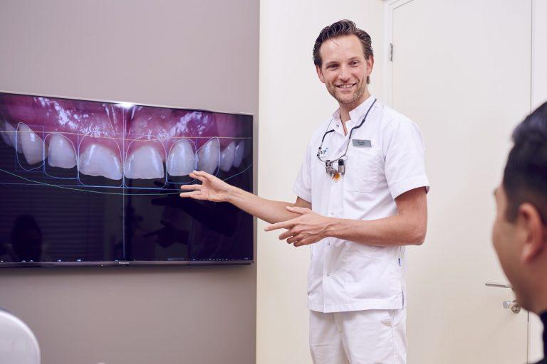 Gebitsslijtage Tandslijtage Herstellen van slijtage Esthetische Tandheelkunde DSD Digital Smile Design Bespreken