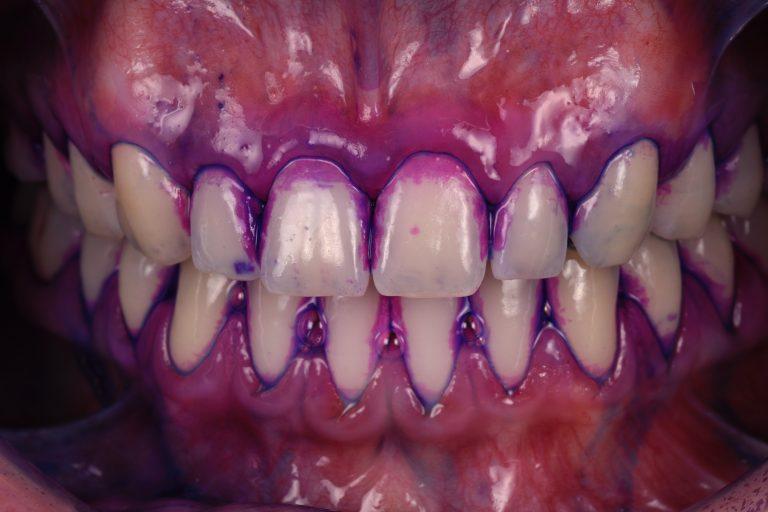 Parodontologie Parodontitis Tandvleesontsteking Parodontiumstatus Ontstoken Tandvlees Bloedend MP3 Tandartsen