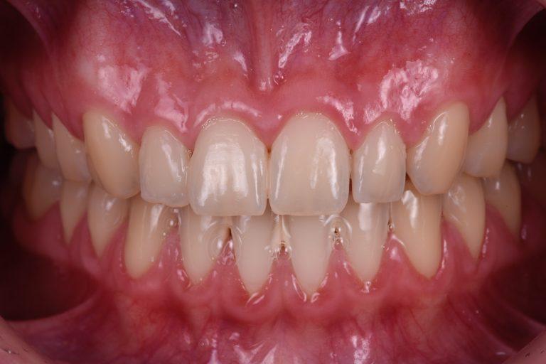 Plaque kleuring mondhygiëne mondverzorging poetsen poetsinstructie MP3 Tandartsen