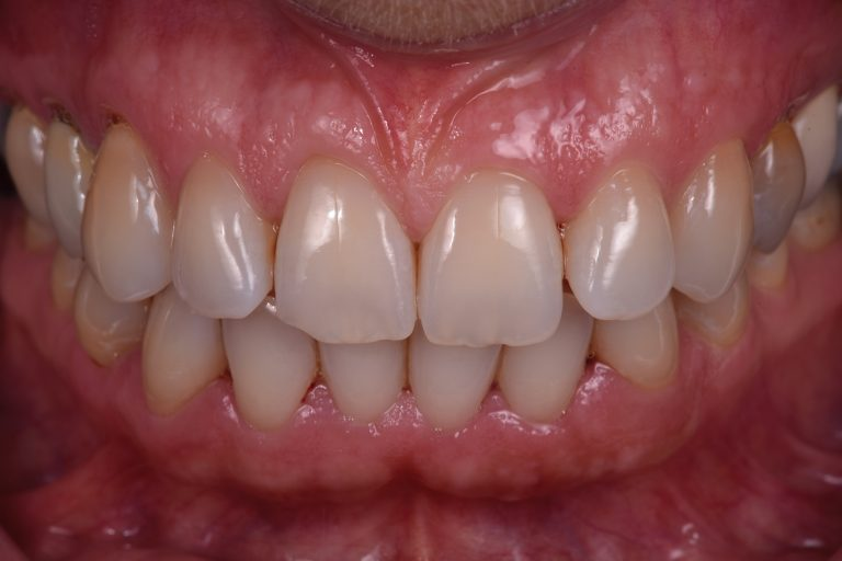 Fotografie Mondfotografie MP3 Tandartsen Behandelplan Mooie Witte Tanden