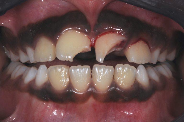 Trauma stukken van de tanden af Bescherming Gebitsbescherming MP3 Tandartsen