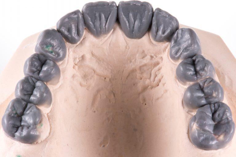 Wax-Up Kwalident Irmen de Vries Esthetische Tandheelkunde Slijtage MP3 Tandartsen Tandslijtage Gebitslijtage