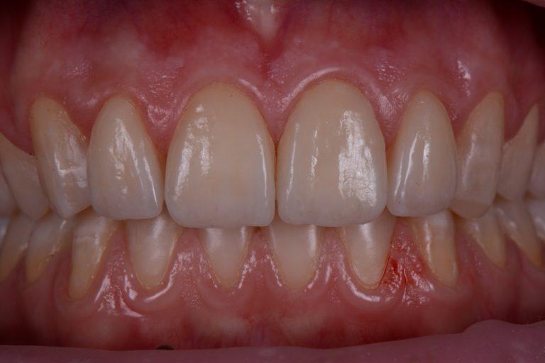 Invisalign MP3 Tandartsen Apeldoorn Esthetsiche Tandheelkunde Mooie tanden Cosmetisch