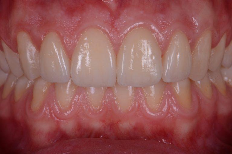 Invisalign Apeldoorn MP3 Tandartsen Esthetiek Mooie witte tanden aligners