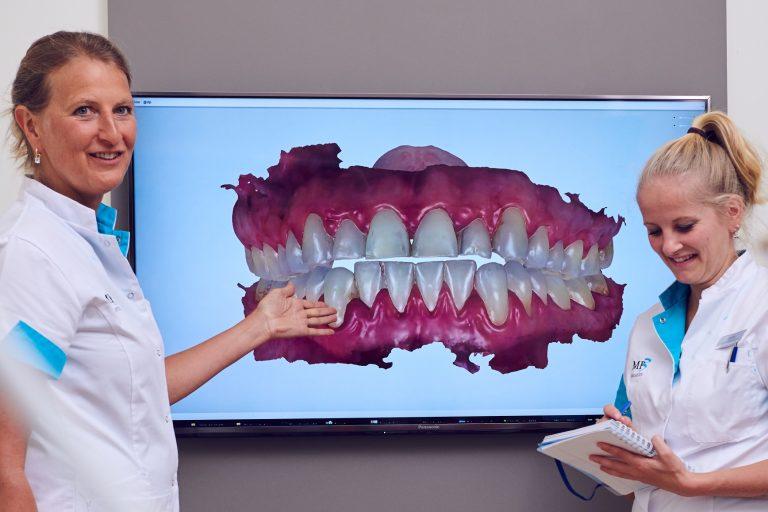 Aanmelden Intake MP3 Tandartsen Apeldoorn Beste Tandarts Gezond gebit mooi Esthetisch Cosmetisch Witte tanden