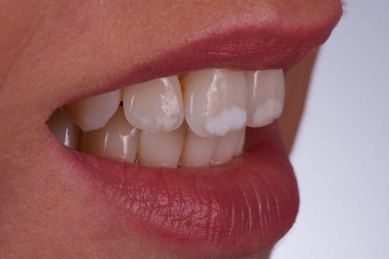 Witte Vlekken White Spots Icon DMG Verwijderen Removal Fluorosis