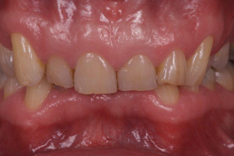 Denti Check DentiCheck Zorgplan Zorgdoel Behandelplan MP3 Tandartsen