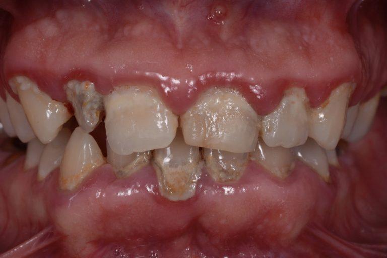 Denti Check DentiCheck Zorgplan Zorgdoel Behandelplan MP3 Tandartsen Mondhygiëne Plaque Niet Poetsen