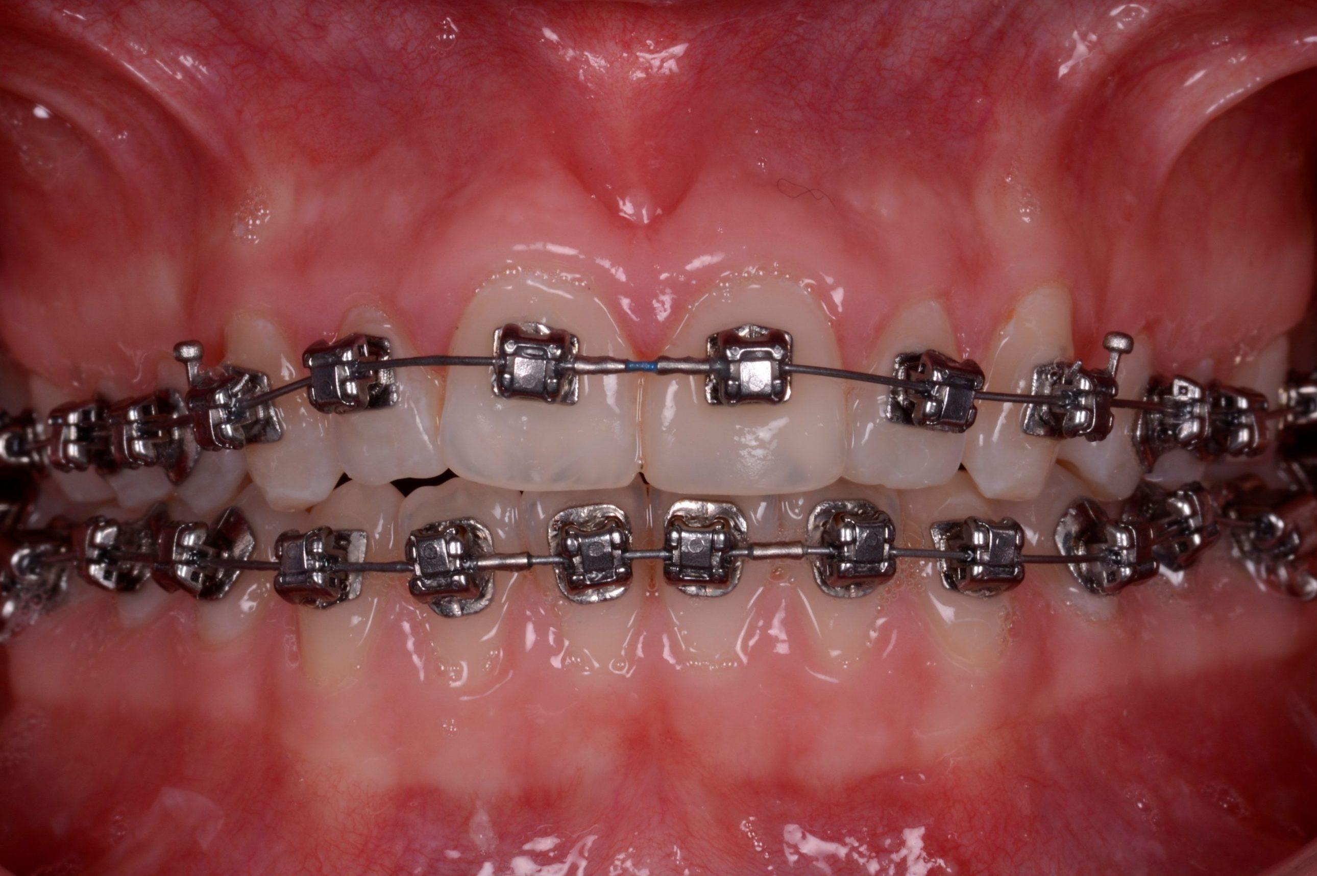 Insignia, beugel, brackets, vaste beugel, mp3 tandartsen, ormco, beugel plaatsen, beugel schoonhouden, mondhygiene