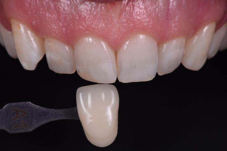 Bleken Witte Tanden MP3 Tandartsen Mooie Lach Resultaat Cosmetisch Esthetisch
