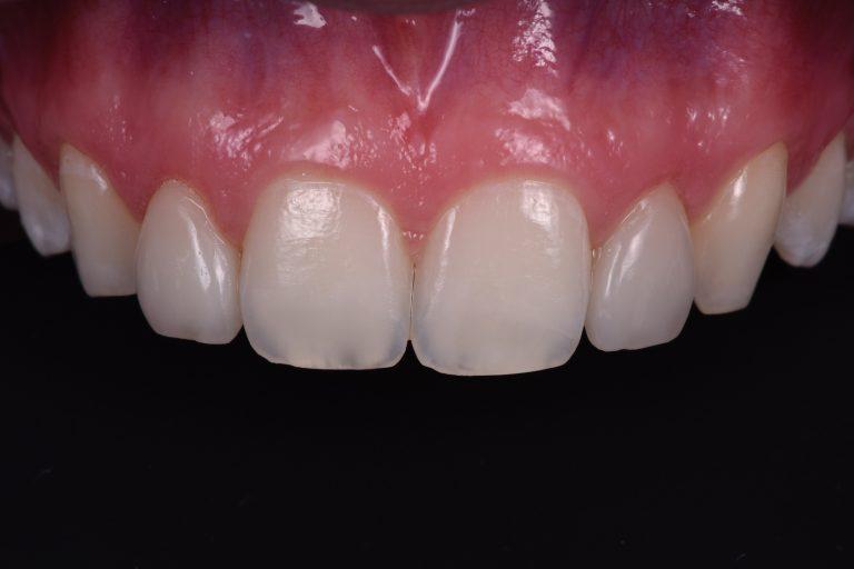 Bleken Witte Tanden Stralende Lach Whitening Bleaching Boutique MP3 Tandartsen