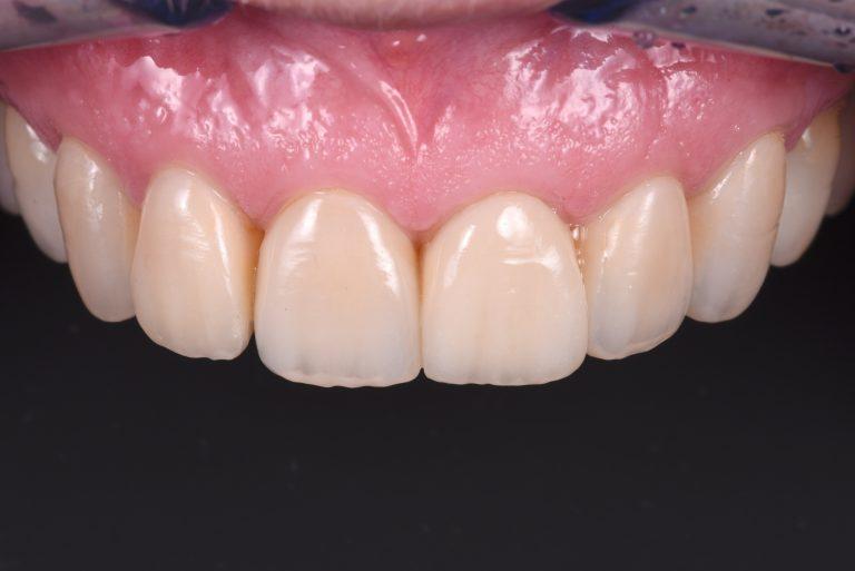 Volledige rehabilitatie porselein esthetiek emax lithiumdiscilicaat mooie rechte tanden MP3 Tandartsen