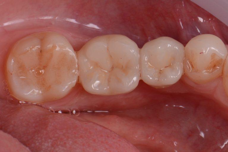 Keramische Implantaten Witte Implantologie Implantoloog MP3 Tandartsen