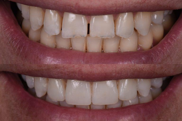 Herstel Slijtage Tandslijtage Gebitslijtage Reconstructieve Tandheelkunde MP3 Tandartsen Esthetiek Facings