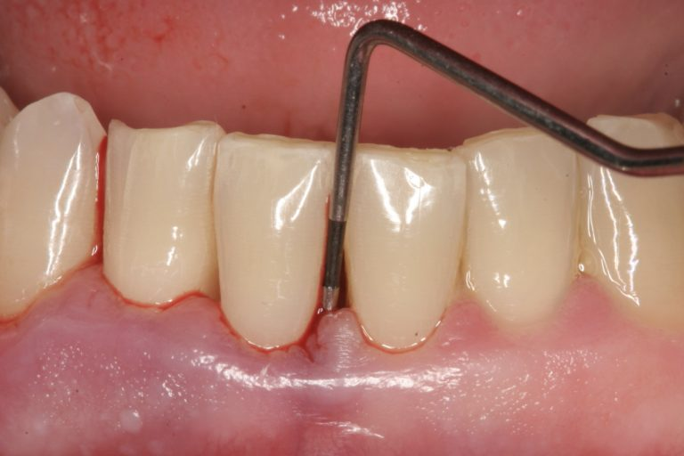 Pocket meting ontstoken tandvlees bloeding DPSI MP3 Tandartsen