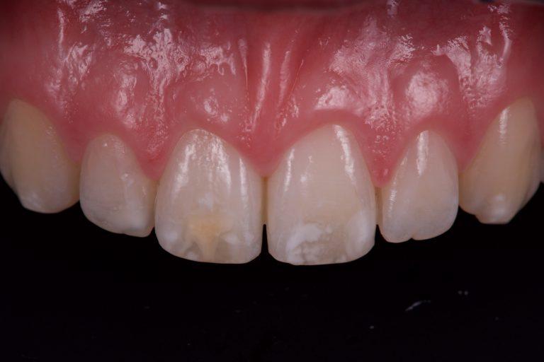 Witte Vlekken Verwijderen White Spots Removal Icon DMG MP3 Tandartsen Fluorosis Amelogenesis Imperfecta