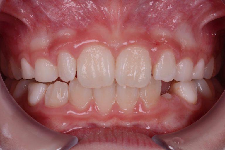 Myobrace Mongewoontes Mondademhaling Myofunctionele therapie Slikken Infantiel Rechte tanden Trainer T4K Myofunctional MRC OMFT