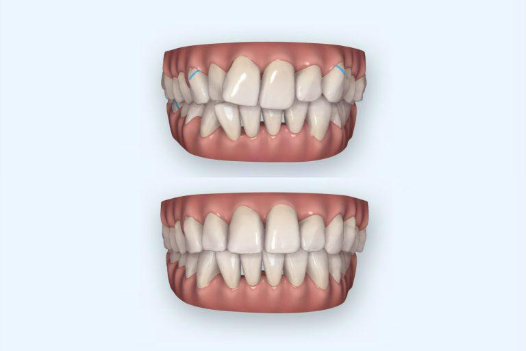 invisalign align doorzichtige beugel onzichtbare beugel metaalvrij nikkelvrij rechte tanden mooie lach mooie tanden mp3 tandartsen