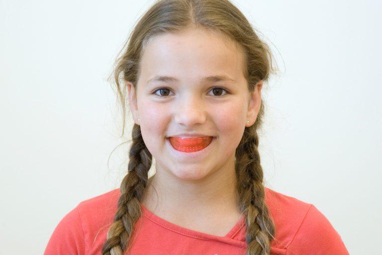 Myobrace myofunctionele therapie rechte tanden mondgewoontes OMFT beugel spierbeugel voor de mond