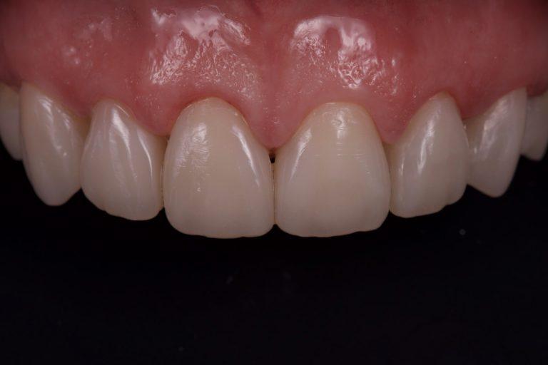 Gebitslijtage Gebitsslijtage Tandslijtage Herstellen van Slijtage Esthetische Tandheelkunde DSD Digital Smile Design Erosie Tanderosie