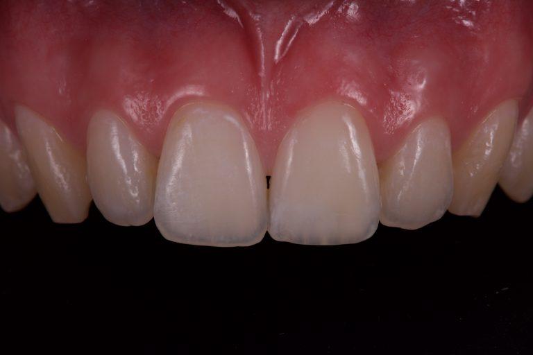 witte vlekken verwijderen icon dmg mooie tanden bleken esthetische tandarts gele vlek beginnend gaatje composiet white spots