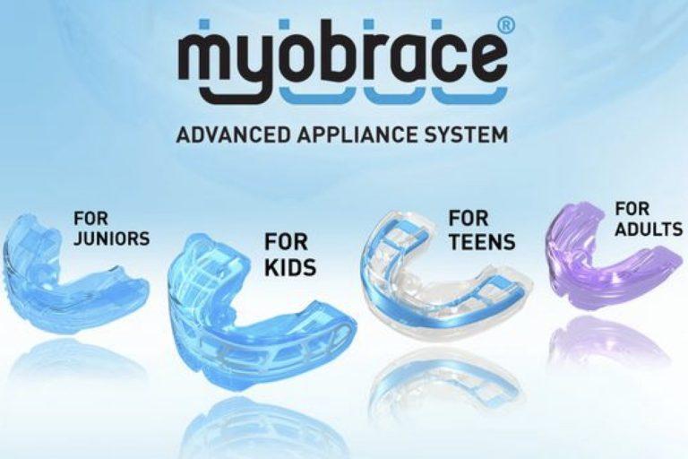 Myobrace myofunctionele therapie rechte tanden mondgewoontes OMFT beugel