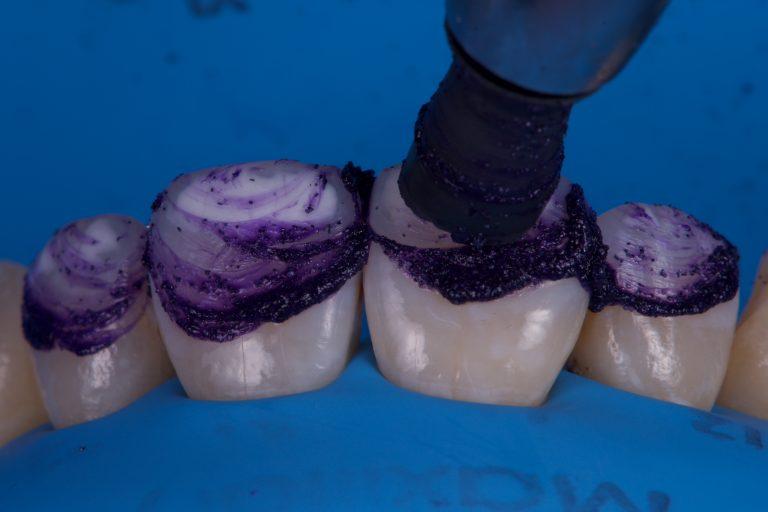 micro-abrasie schoonmaken etsen tanden witte vlekken infiltreren opalustre ultradent white spots