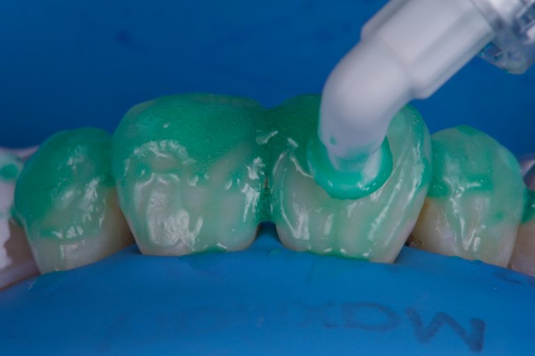 micro-abrasie schoonmaken etsen tanden witte vlekken infiltreren icon etch dmg white spots