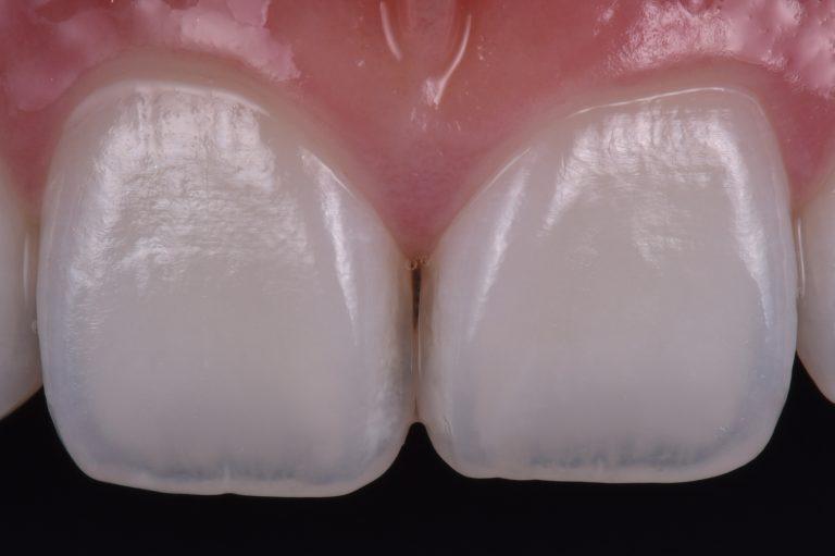 witte vlekken verwijderen icon dmg mooie tanden bleken esthetische tandarts white spots