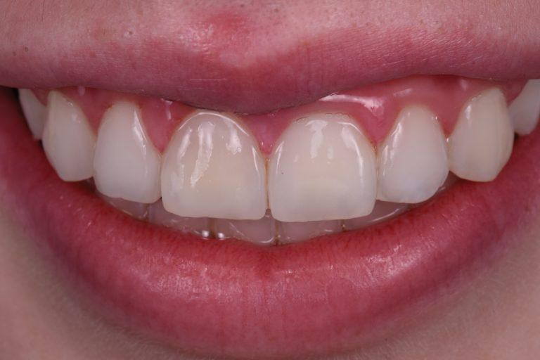 witte vlekken verwijderen icon dmg mooie tanden bleken esthetische tandarts mondademhaling micro-abrasie