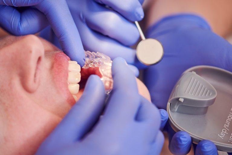 Invisalign Doorzichtige beugel rechte tanden esthetiek cosmetisch