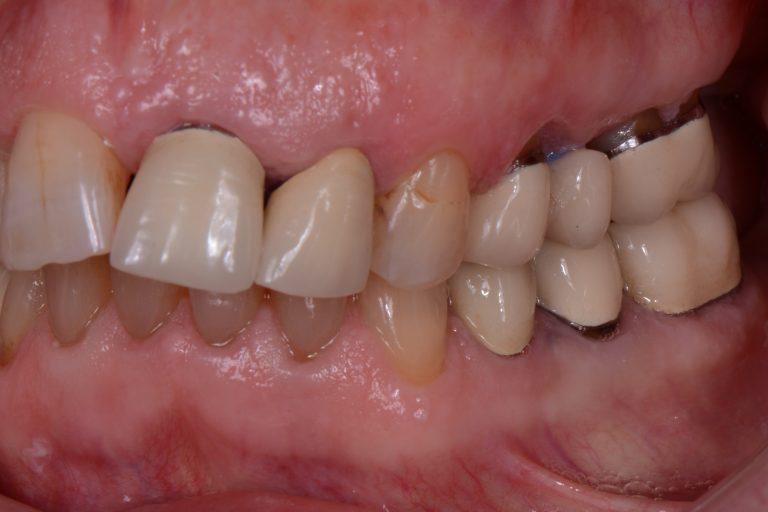 amalgaam gouden kronen verwijderen grijze vullingen gezonde mond biologische tandarts