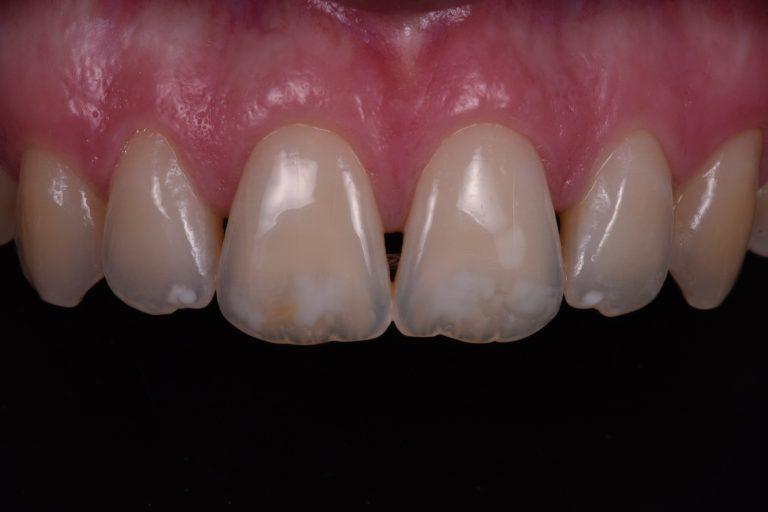 bleken witte tanden mooi esthetisch vlekken infiltreren white spots