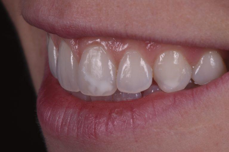 witte vlekken verwijderen verkleuringen tanden bleken esthetisch voortanden mooi white spots